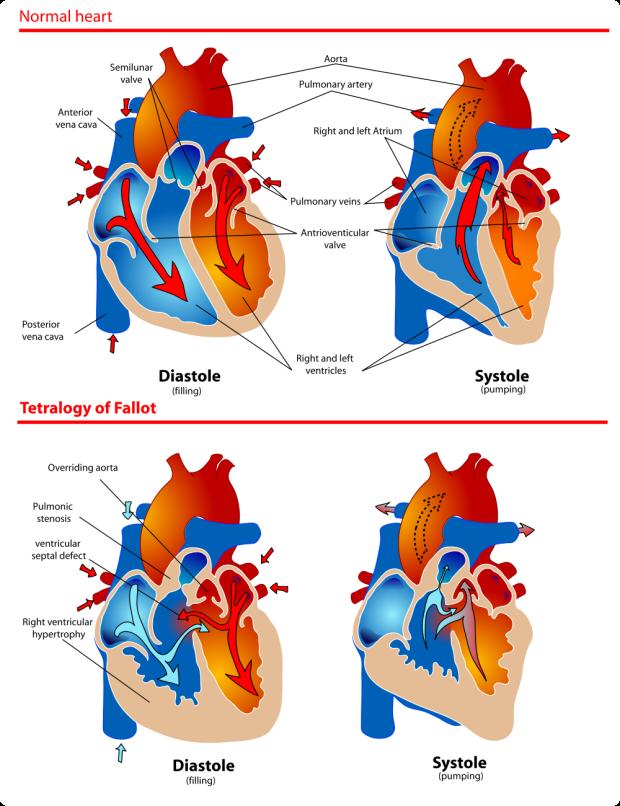 Healthy heart vs TOF heart